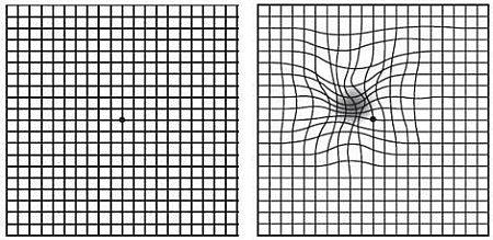 Amsler grid pictures